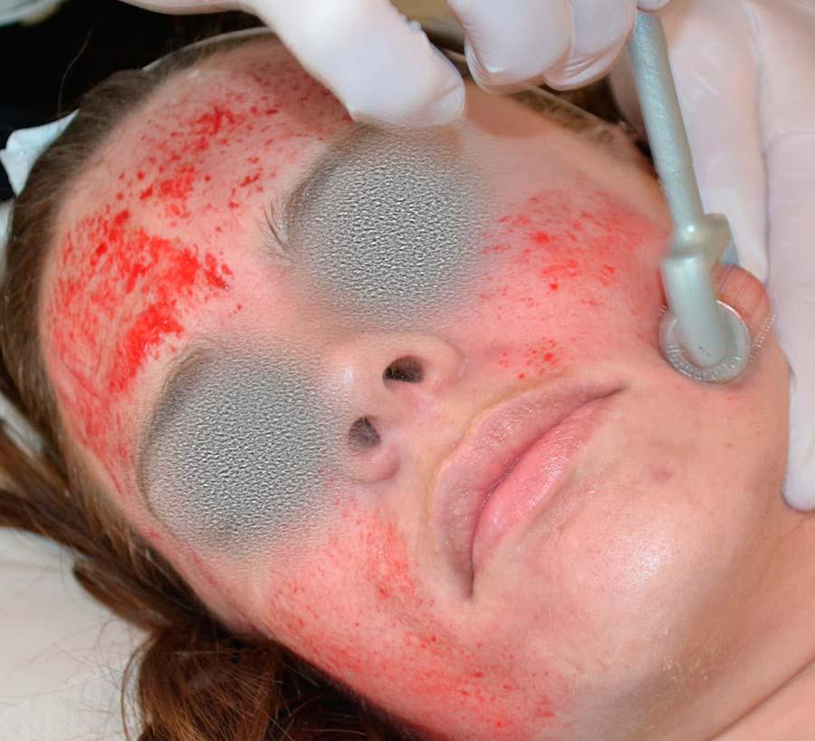 Врачу, оказалось отзывы укрепляющее средство для роста волос с розмарином weleda два