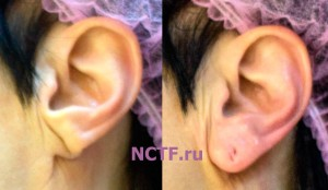 Контурная пластика мочки уха