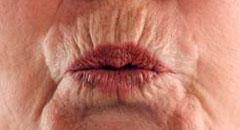 кисетные морщины над верхней губой