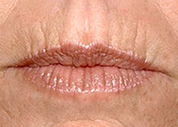 вертикальные морщины на верхней губе