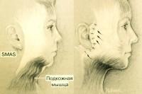 хирургическая подтяжка лица СМАС-лифтинг