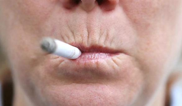 морщины курильщика на верхней губе