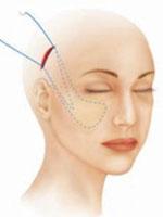 хирургическая нитевая подтяжка