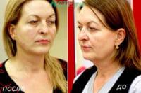 Нитевая подтяжка лица фото до и после