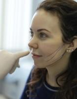 Автор отзыва о нитевой подтяжке лица нитями аптос
