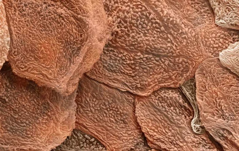 Эпидермис под электронным микроскопом