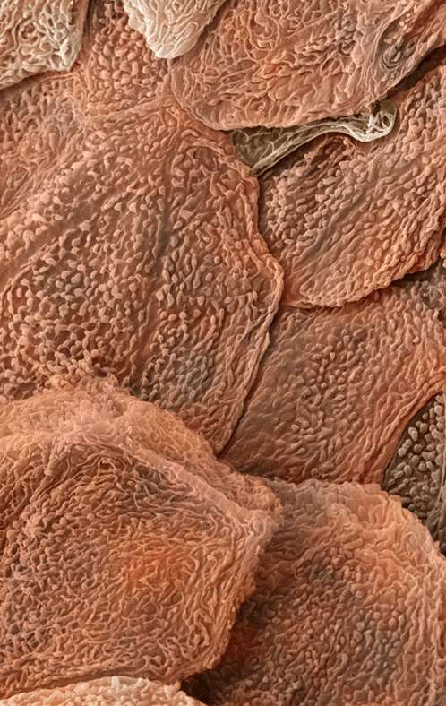 проходит небольшая человеческий ноготь под микроскопом фото уходе, произрастает