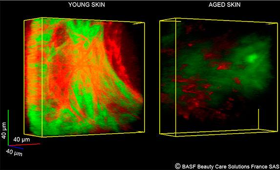 Старение кожи: коллагеновый каркас в разном возрасте
