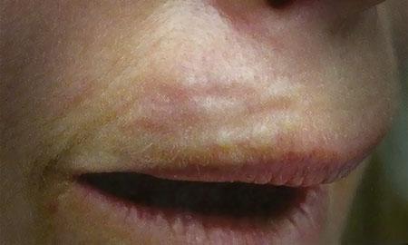попытка убрать кисетные морщины над верхней губой филером